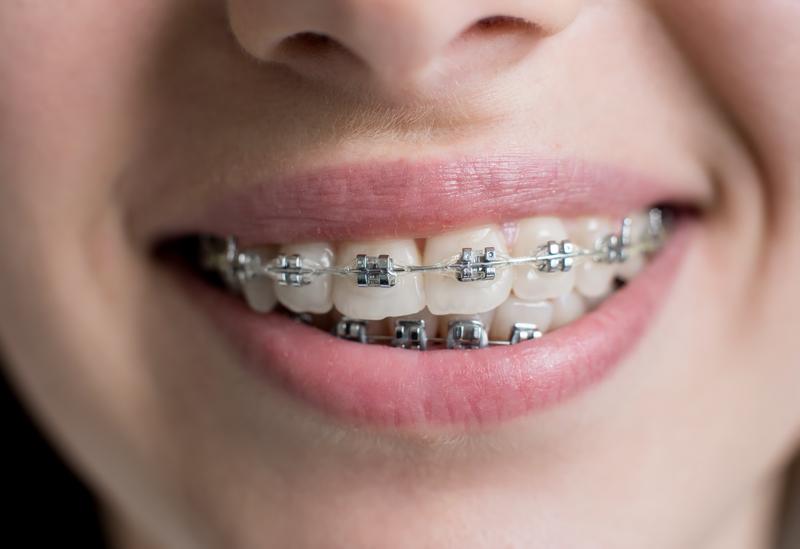 orthodontics in Nelson - invisalign, braces and smile design
